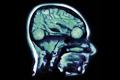 """Печатная реклама """"Smart Brain""""  Агентство: Bates Y&R  Рекламодатель: Daimler AG  Бренд: Smart"""